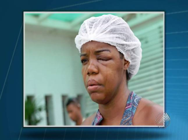Violência Policial - Cozinheira perde parte da visão ao ser agredida em show no Pelourinho