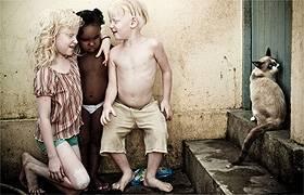 primos-albinos