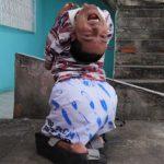 História inspiradora de baiano com deformidade rara alcança milhões no mundo