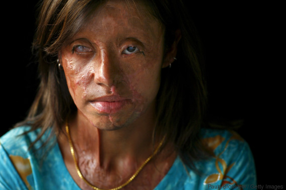 PAK: Acid Violence Against Women in Pakistan