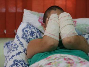 'Tem o meu perdão', diz jovem que teve mãos decepadas pelo marido