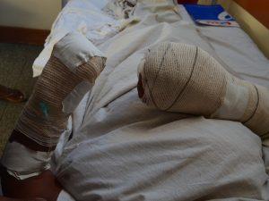 'Até agora estou chorando', diz vítima mutilada em tentativa de estupro