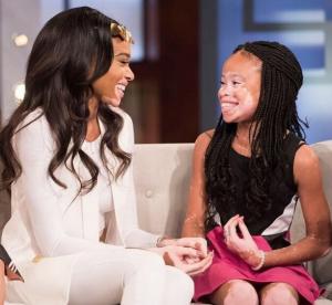 Após ser vítima de bullying, modelo de 10 anos com vitiligo conquista o mundo da moda