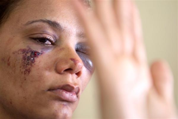 Comissão aprova pensão alimentícia provisória para mulher agredida
