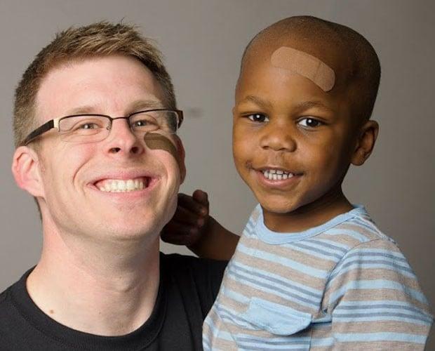 Inspirado em filho adotivo, americano cria curativos para pele negra