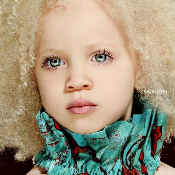 Ava_Clarke_modelo_albina_menina_01-768x768