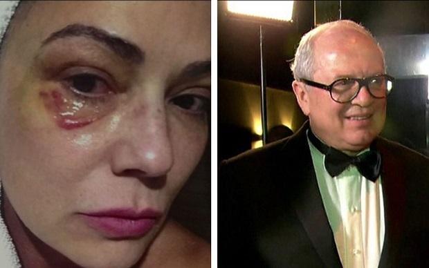 Ex-marido de Luiza Brunet dispara contra Lei Maria da Penha: 'Leizinha vagabunda'