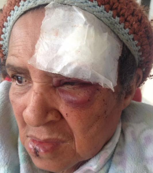 Idosa é agredida a pedradas no RJ e família denuncia intolerância religiosa