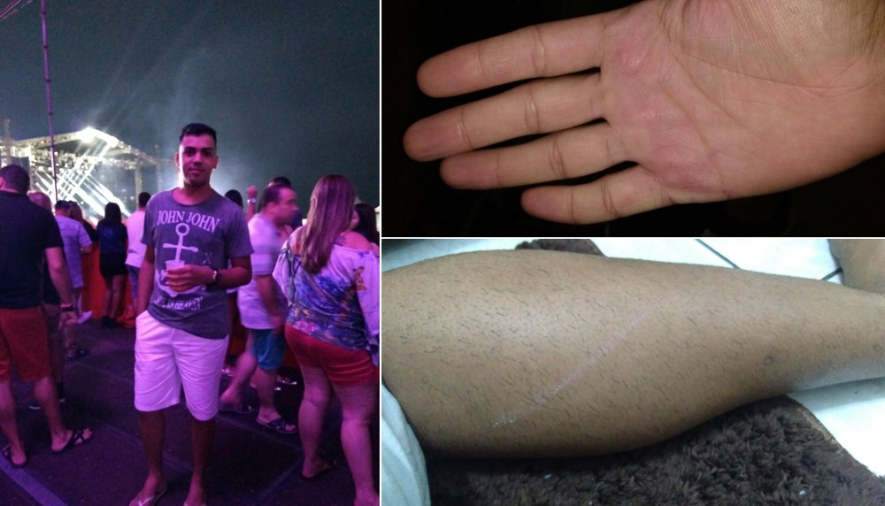 Jovem é agredido e diz ser vítima de homofobia durante show sertanejo: 'Medo de morrer'