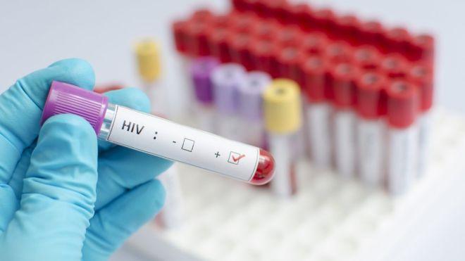 Paraíba registra mais de seis mil casos de Aids em 11 anos