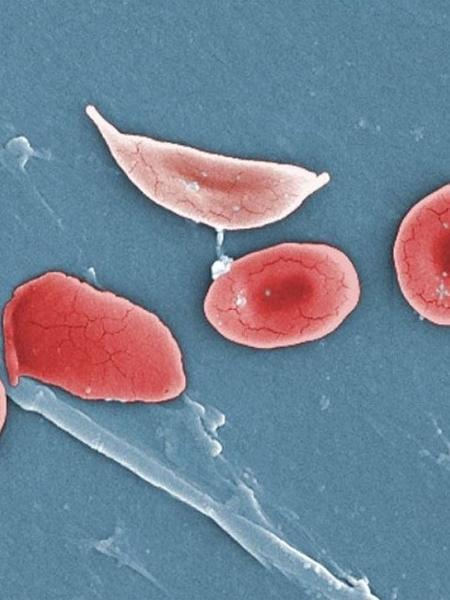 Apesar de tratamento avançar, doenças falciformes crescem em países pobres