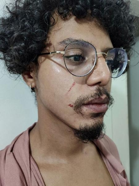 Racismo: mercado é multado em R$ 112 mil após segurança acusar homem negro de furto