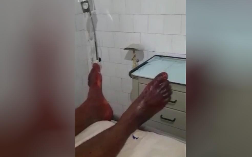 Professor diz que foi agredido e baleado por PM em Monte Alegre, em Goiás — Foto: Reprodução/Arquivo Pessoal