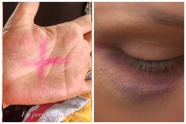 """Mulher vítima de agressões fez um """"X"""" na mão para pedir ajuda — Foto: Arquivo Pessoal"""
